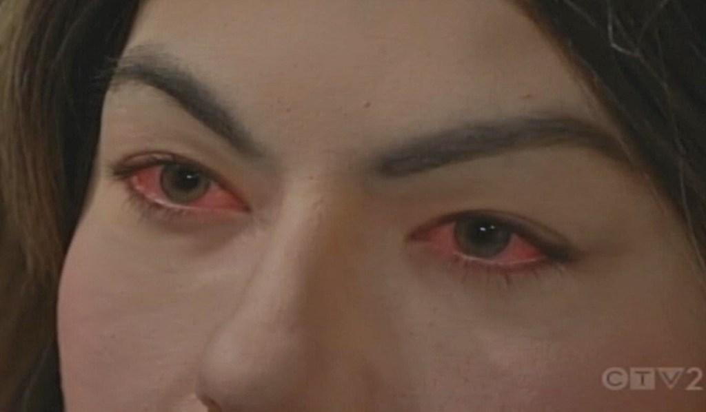 Hooppop rode ogen B&B