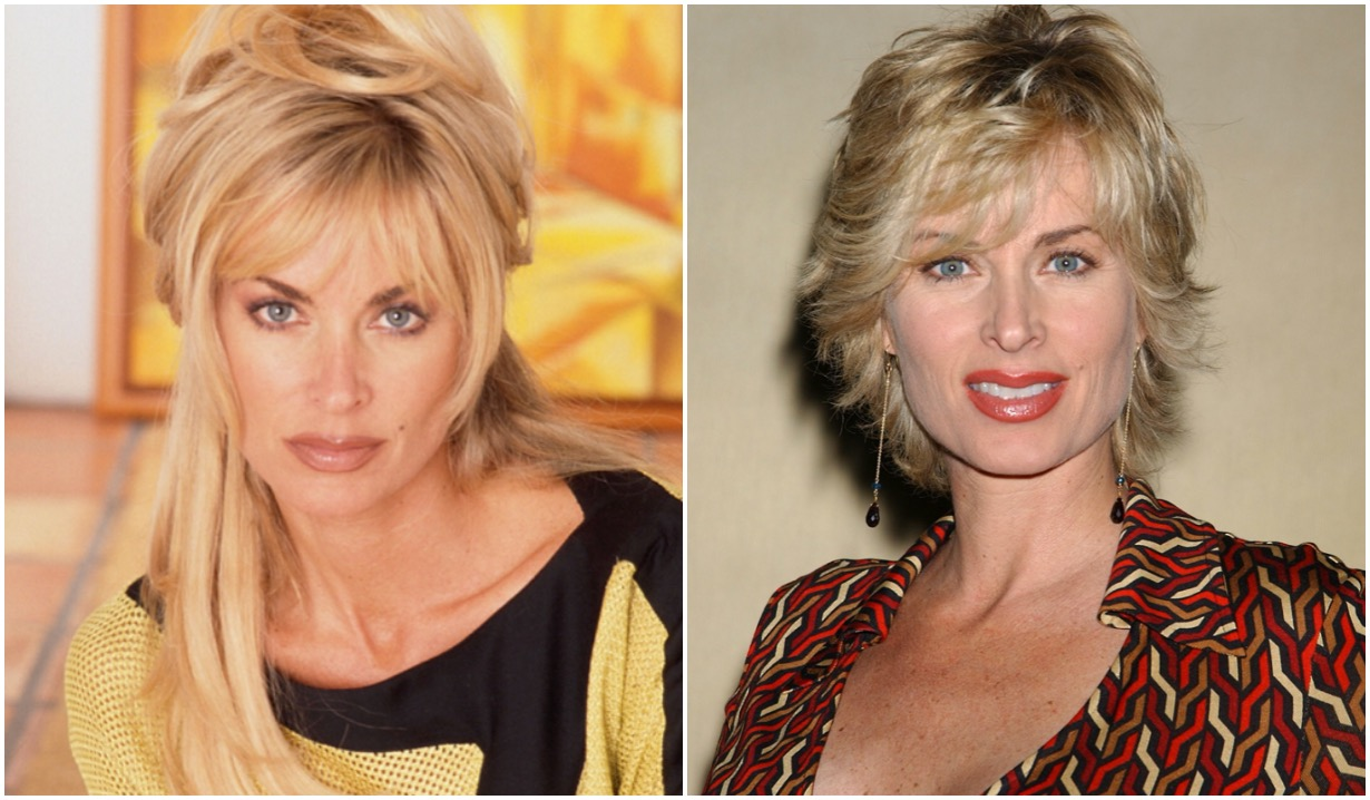 yr eileen davidson before after