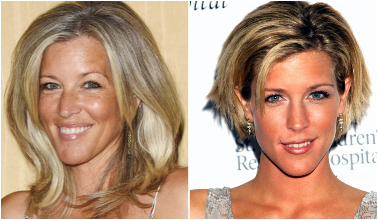 gh laura wright before after