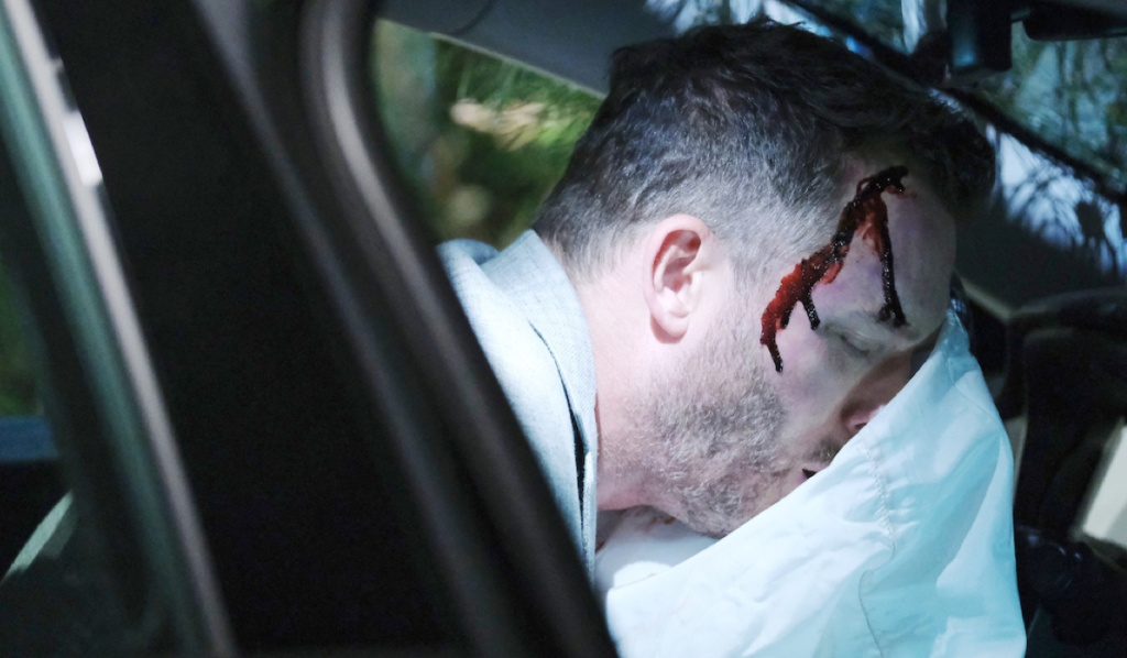 Brady's face pressed against an air bag, blood trickles from his head on Days of Our Lives